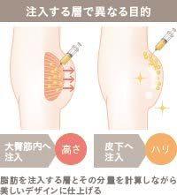 脂肪を注入する層で異なるお尻の仕上がり