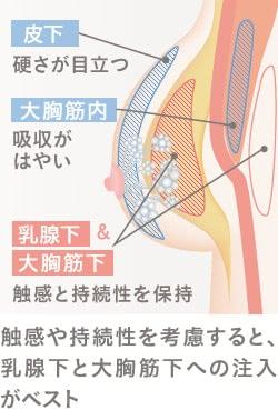 触感や持続性を考慮すると、乳腺下と大胸筋下へのヒアルロン酸注入がベスト