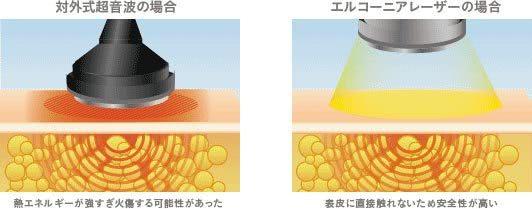 エルコーニアレーザーは表皮に直接触れないため、安全性が高い