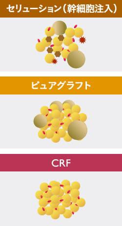 幹細胞注入からコンデンスの時代へ