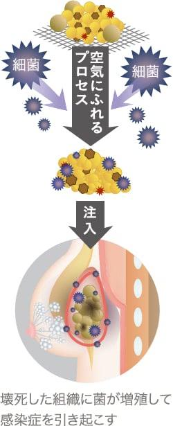 しこりと感染症の関係
