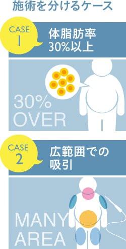 脂肪吸引を複数回に分けるケースとは?