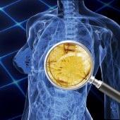 豊胸シリコンバッグとヒアルロン酸の除去治療