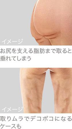 ベイザー脂肪吸引の失敗イメージ
