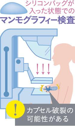 シリコンバッグが入った状態でのマンモグラフィー検査