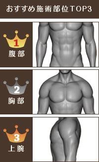 男性脂肪吸引のおすすめ部位TOP3