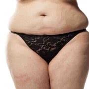 脂肪吸引の失敗とは!? 衝撃写真3選と修正法