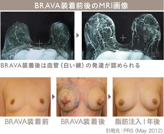 BRAVA×コンデンスリッチ豊胸の施術2