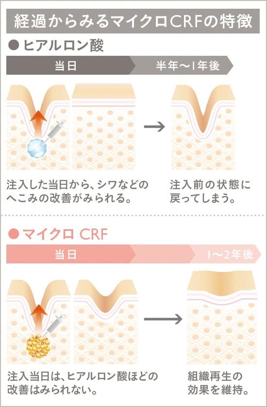 マイクロCRF注入(顔の脂肪注入)の施術2