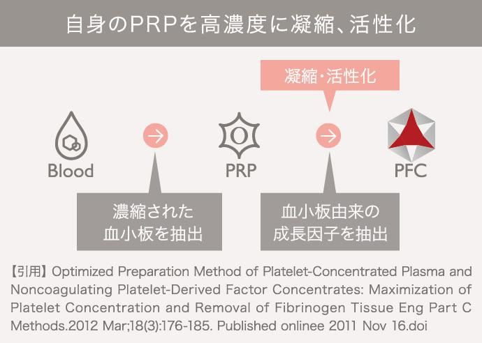 PFC注入(自己血液療法)の施術3