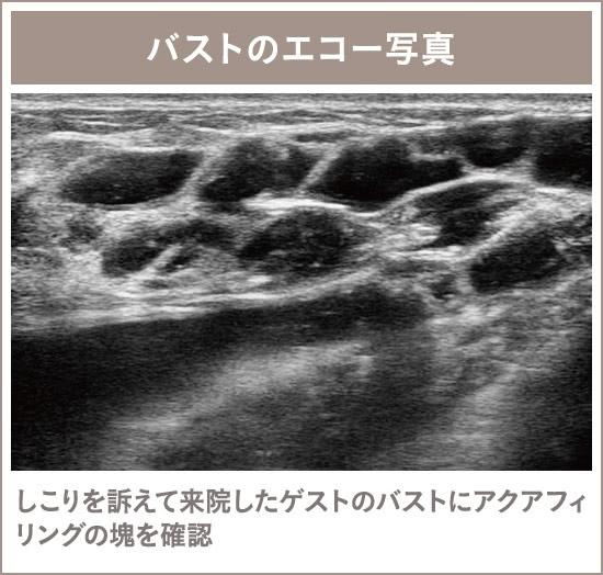 アクアフィリング(アクアリフト)豊胸除去外来の施術2