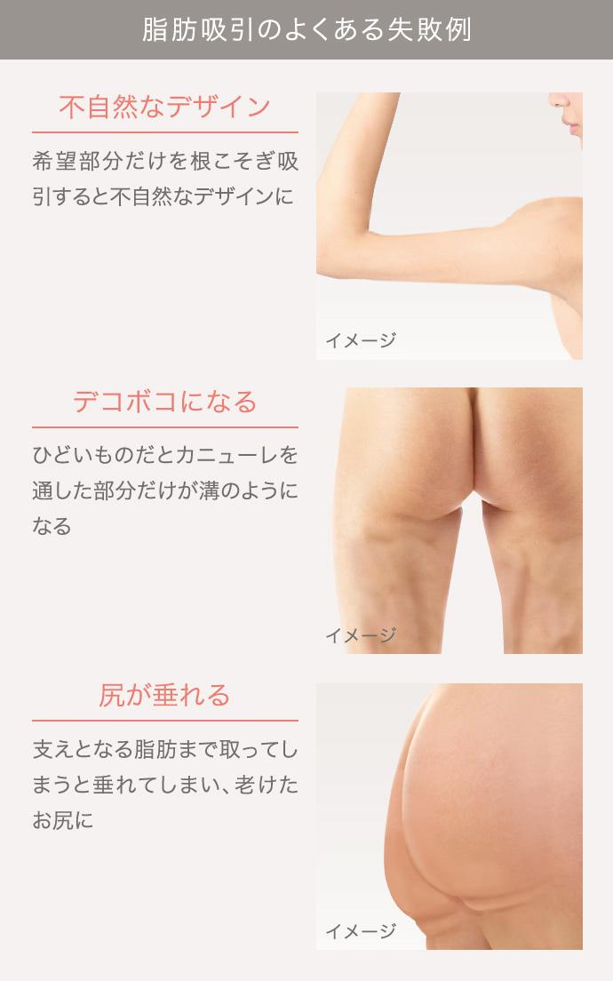 他院の脂肪吸引修正外来の施術1