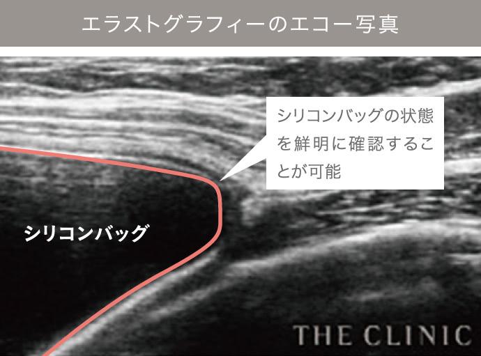 乳がん後の乳房再建リタッチ外来の施術3