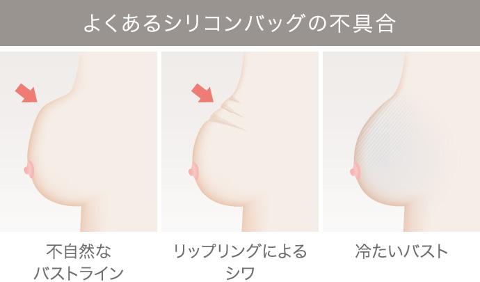 乳がん後の乳房再建リタッチ外来の施術1