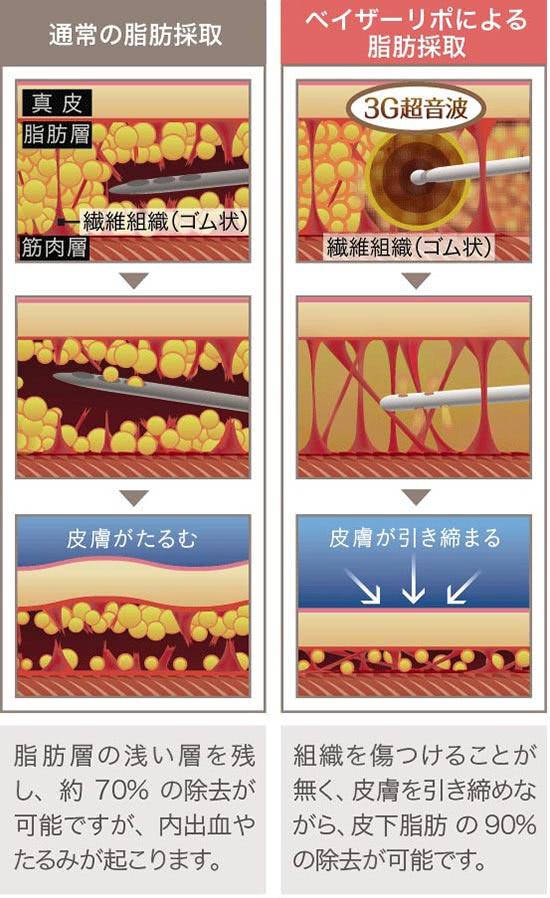 ベイザー脂肪吸引(ベイザーリポ)の施術1