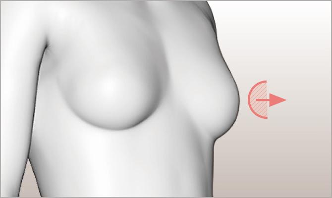 陥没 乳 原因
